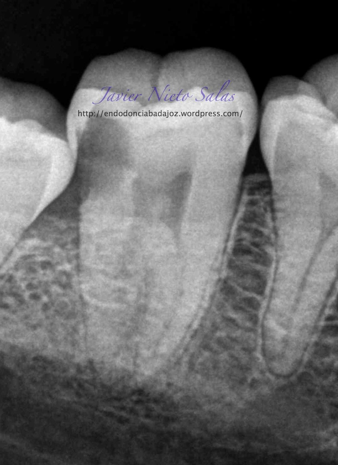 La anatomía de los temibles segundos molares inferiores ...