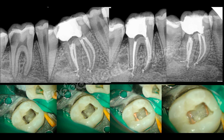 Endodoncia Badajoz | Blog de endodoncia | Página 6